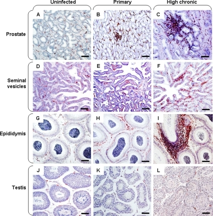 Immune activation in the male genital organs.Immunohistochemical detection of HLA-DR+ cells in the prostate (A–C), seminal vesicle (D–F), epididymis (G–I) and testis (J–L) of uninfected (A, D, G, J), primary-infected (B, E, H, K) or high chronic macaques (C, F, I, L). Scale bars = 100 µm.