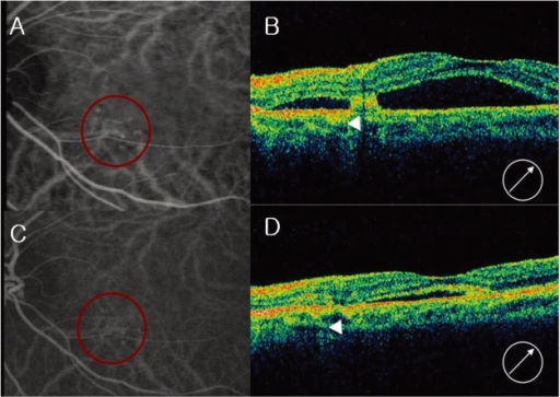 Case 3, left eye, the fellow eye of the case 4 patient (Fig. 1). (A) Midphase indocyanine green angiogram (ICGA), showing multiple polypoidal dilations of choroidal vessels and an interconnecting network. (B) Optical coherence tomograph (OCT) showing subfoveal serous elevation and a polypoidal lesion (arrow head). (C) Midphase ICGA showing reduced polypoidal lesion and interconnecting vessels. (D) OCT after three intravitreal bevacizumab injections, showing reduced subretinal fluid and a polypoidal lesion re-attached to the Bruch's membrane and choroids (arrow head).