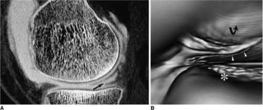 Medial meniscus tear in a 28-year-old man with knee pain after trauma.A. Sagittal CT image clearly demonstrating an oblique tear of the medial meniscus (arrow).B. Virtual arthroscopy of the medial meniscus showing cleavage (arrow) and a rugged free margin of torn meniscus (arrowheads). The tibial plateau (asterisk) and femur condyle (curved arrow) are also shown.