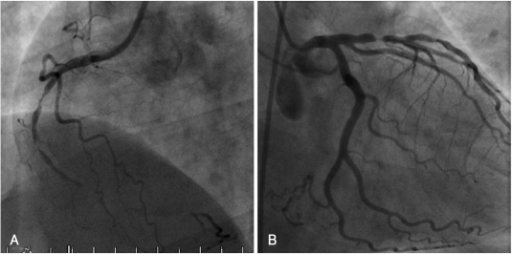 Coronary angiography at pre-intervention. A: right coronary artery. B: left coronary artery.