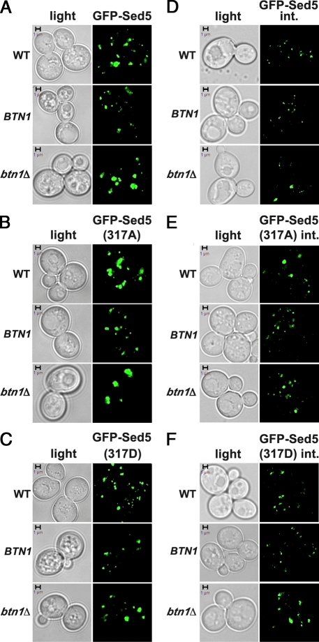 BTN1 overexpression or deletion has opposing effects on Golgi morphology. (A) Deletion of BTN1 enhances Golgi clustering in cells expressing GFP-Sed5. WT, btn1Δ, and WT cells overexpressing BTN1 from a multicopy plasmid (BTN1) and all expressing GFP-Sed5 from a single-copy plasmid are shown. Note the large puncta in btn1Δ cells. (B) Deletion of BTN1 enhances Golgi clustering in cells expressing GFP-Sed5317A, whereas BTN1 overexpression enhances fragmentation (same as in A, except all strains express GFP-Sed5317A). Note the large puncta in WT and btn1Δ cells. (C) Golgi clustering is reduced in btn1Δ cells expressing GFP-Sed5317D (same as in A, except all strains express GFP-Sed5317D). (D) Deletion of BTN1 enhances Golgi clustering in cells expressing GFP-Sed5 from its genomic locus (GFP-Sed5 integrated [int.]). WT, btn1Δ, and WT cells overexpressing BTN1 from a multicopy plasmid (BTN1) and all expressing GFP-SED5 from its genomic locus are shown. Note the larger puncta in btn1Δ cells. (E) BTN1 overexpression reduces Golgi clustering in cells expressing GFP-Sed5317A from its genomic locus (same as in D, except all cells express GFP-SED5317A). Note the reduction in puncta size in cells overproducing Btn1. (F) Deletion of BTN1 enhances Golgi clustering in cells expressing GFP-Sed5317D from its genomic locus (same as in D, except all cells express GFP-SED5317D). Note the enhancement in puncta size in cells lacking BTN1. Bars, 1 µm.