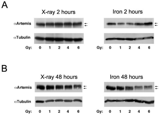 Artemis phosphorylation is delayed following high LET damage. Western blots were probed for total Artemis protein and mobility shifts of the protein indicate phosphorylation has occurred. Blots are shown 2 h post X-ray or iron nuclei exposure (A, left and right panel respectively) and 48 h post X-ray or iron nuclei exposure (B, left and right panel respectively). Arrows indicate location of basally-phosphorylated Artemis (lower arrow) and hyper-phosphorylated Artemis (upper arrow).