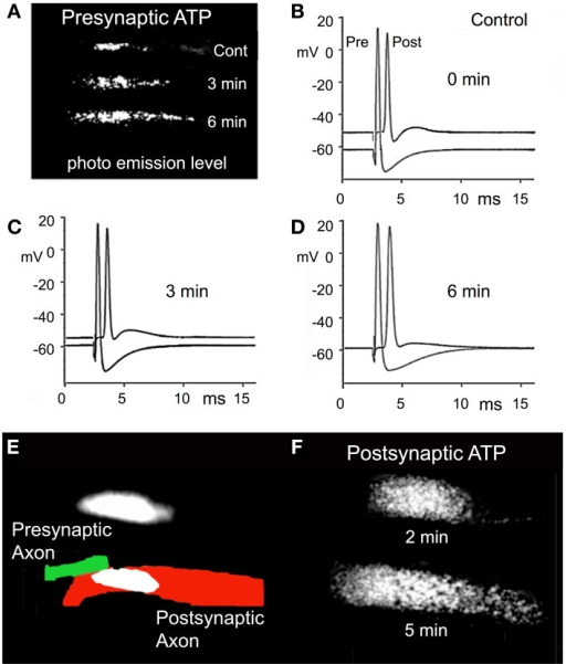 Effect of RNS60 on ATP synthesis. (A) The levels of luciferin/luciferase light emission in control ASW (Cont) and 3 and 6 min following RNS60 superfusion. (B) Presynaptic and postsynaptic action potentials in control ASW. (C) Action potentials recorded 3 min after superfusion with RNS60. (D) Action potentials recorded 6 min after superfusion with RNS60. (E) Drawing of presynaptic (green) and postsynaptic (red) element is superimposed on photograph of postsynaptic light emission. Presynaptic light emission is shown above the drawing. (F) Postsynaptic light emission 2 and 5 min after superfusion with RNS60. Note increase in postsynaptic resting potential in (C,D), indicating an improvement of postsynaptic axon viability that is consistent with the increased level of ATP measured at the postsynaptic terminal following RNS60 ASW superfusion.