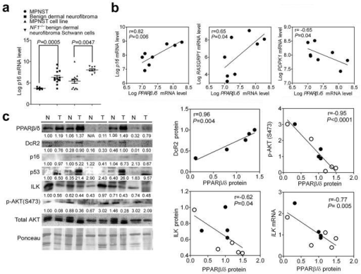 PPARβ/δ promotes cellular senescence in human benign lesions. (a) p16 mRNA expression in different neurofibroma tumors (malignant peripheral nerve sheet tumor (MPNST) or benign dermal neurofibroma) and tumor-derived cell lines (MPNST or NF1−/− benign dermal neurofibroma Schwann cell lines). (b) Scatter plots of the log2 value of PPARβ/δ mRNA compared to p16, RASGRP1 and PDPK1 in NF1-derived primary benign neurofibroma Schwann cells with NF1−/− mutation. (c) Western blot analysis of paired human normal colon and human colon adenomas and scatter plots of PPARβ/δ protein level with protein level of DcR2, p-AKT (S473), ILK and mRNA level of ILK. Relative expression level of proteins was normalized to the intensity of Ponceau staining and is shown as the relative fold change as compared to the normal colon for the first sample in lane 1. The mRNA level of ILK was normalized to that of ACTIN. Close and open circles represent normal tissue and colon adenomas respectively.