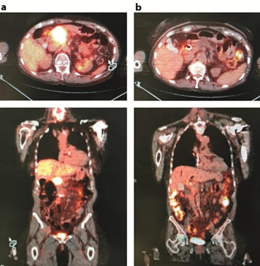 PET scans prior to treatment (a) and after 2 months of gemcitabine plus nab-paclitaxel chemotherapy (b).