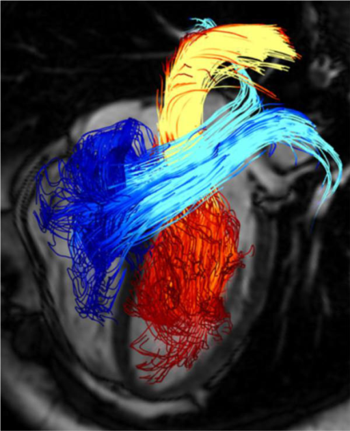 Pathline visualization of cardiac blood flow using 4D phase contrast MRI. Pathlines are originated from planes at the mitral valve (red-yellow) and the tricuspid valve (blue-turquoise) at early diastolic ventricular inflow. A separately acquired balanced steady-state free precession three-chamber image was superimposed for providing anatomical orientation [67].
