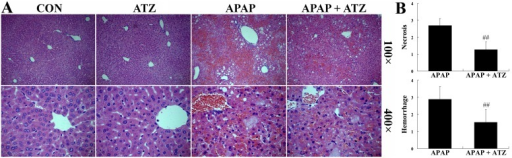 Pretreatment with ATZ alleviated liver histological abnormalities induced by APAP.Liver samples were harvested at 8 h after APAP exposure and the liver sections were stained with hematoxylin-eosin for morphological evaluation. (A) The representative liver sections of each group are shown. (B) The degree of hepatocellular necrosis and hemorrhage were semi-quantified using a 0 (no lesion) to 4 (severe change) scoring system in 20 random fields at 100× magnification per animal (n = 3 per group). Data were expressed as mean ± SD, ##P<0.01, as compared with the APAP group.
