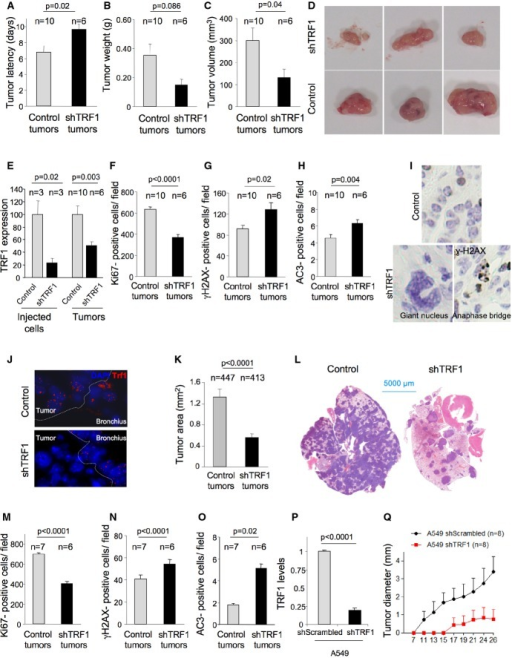 Trf1 downregulation in K-RasG12V-transformed lung cells leads to a decreased tumor growth and decreased metastatic potential in allograft and xenograft modelsA–C The latency (A), volume (B), and weight (C) of subcutaneous tumors generated by control and Trf1-downregulated K-RasG12V-transformed lung cells in athymic mice.D Representative images of the subcutaneous tumors.E Trf1 expression levels measured by qPCR in the injected cell line and in the generated subcutaneous tumors.F–H Number of Ki67-positive (F), number of γH2AX-positive (G), and number of active caspase-3-positive (H) cells per field in the subcutaneous tumors.I Representative images of aberrant giant nuclei and anaphase bridges in the Trf1-downregulated subcutaneous tumors compared to the normal nuclei of control tumors.J TRF1 immunofluorescence shows the downregulation of Trf1 in lung tumors of the mice intravenously injected with control and Trf1-downregulated cells.K Tumor area measured in the lungs of the mice intravenously injected with control and Trf1-downregulated cells.L Representative images of the lungs colonized by control and Trf1-downregulated cells, respectively.M–O Number of Ki67-positive (M), number of γH2AX-positive (N), and number of active caspase-3-positive (O) cells per field in the lung tumors.P Trf1 expression levels measured by qPCR in the A549 cell line infected either with sh-scrambled or sh-Trf1.Q Growth of A549-derived tumors.Data information: Error bars represent standard error. The number of mice and tumors analyzed per condition is indicated. t-test was used to assess statistical significance.