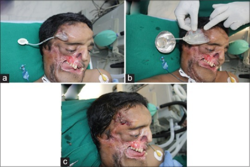 (a-c) Deformity in forehead region during inflation due to poor skin laxity leading to failure. Device drained, deflated removed and site sutured