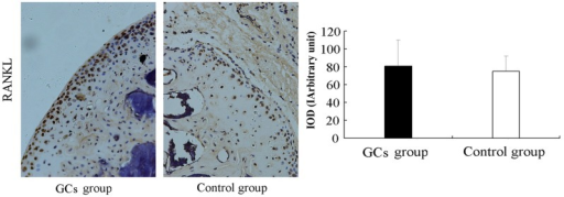 Effect of GCs treatment on the expression of RANKL. Cellular localization and protein expression of RANKL were measured using immunohistochemistry. No significant difference in RANKL expression was observed between the GC-treated and control groups. The data are presented as the mean ± standard deviation. GC, glucocorticoid; RNAKL, receptor activator of nuclear factor-κB ligand; intracellular optic density value of immunohistochemical staining.