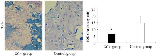Effect of GCs treatment on osteoclast differentiation, as measured by TRAP staining. TRAP-positive multinucleated cells located at the bone surface within the bone destruction were considered to be osteoclasts. Compared with the control group, the number of osteoclasts in the areas of bone destruction was significantly decreased in the GC-treated group. The data are presented as the mean ± standard deviation (*P<0.05, vs. the control group). GC, glucocorticoid; TRAP, tartarate-resistant acid-phosphatase; intracellular optic density value of immunohistochemical staining.