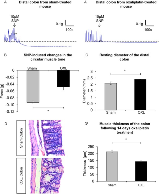 Effects of oxaliplatin treatment on colonic smooth muscles. (A,AI) Smooth muscle relaxation following application of the NO donor, SNP (10 μM) to the colon from day 14 sham (A) and oxaliplatin‐treated (AI) mice. (B) Comparison of the maximum relaxation produced by circular muscles in response to SNP in colonic preparations from sham and oxaliplatin‐treated mice quantified as an absolute change in the force transduction from the basal values. *P < 0.05, significantly different as indicated; n = 6 mice per group. (C) Resting diameter of the distal colon from sham and oxaliplatin‐treated mice. *P = 0.05, significantly different as indicated; n = 7 mice per group. (D) Gross morphological changes in the colon following repeated in vivo oxaliplatin administration. Colonic crypt length was shorter in oxaliplatin‐treated mice and muscle thickness was reduced in comparison to the sham‐treated animals. (DI) Statistical analysis of the muscle layer thickness in the colon preparations from sham and oxaliplatin‐treated mice. Data presented as mean ± SEM. *P < 0.05, significantly different as indicated; n = 6 mice per group, 10 sections per preparation from each animal.
