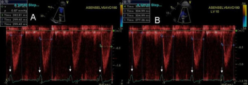 Left ventricular outflow tract pulsed wave Doppler velocity at LV pre-excitation of 5 ms (A) and LV pre-excitation of 10 ms (B). An increase in LV ejection time is shown in panel B. Also note the narrowing of QRS complex in panel B compared to panel A (white arrow heads).