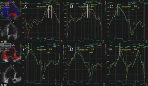 Figure shows tissue velocity maps obtained at baseline (A and C), during LV pre-excitation of 20 ms (B and D) and during LV pre-excitation of 40 ms (C and E) in apical 4 and 3 chamber views. Progressive decrease in septolateral wall delay (shown in B and C compared to A by white lines) and in septoposterior wall delay (shown in D and E compared to C by dotted white lines) occurred with progressively increasing LV pre-excitation. In addition progressive LV pre-excitation led to improvement in septoposterior wall delay in diastole (horizontal white lines, C-E).