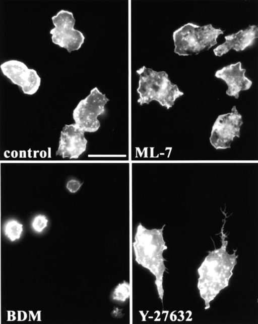 The contractility inhibitors, BDM and ML-7, do not induce tail formation. Monocytes were plated in serum containing media in the presence of various contractility inhibitors. After 45 min, cells were fixed and stained for F-actin to reveal cell morphology. (A) Control; (B) 20 mM BDM; (C) 20 μM ML-7; (D) 10 μM Y-27632. Bar, 20 μm.