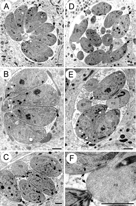 Ultrastructural analysis of the residual bodies induced by MyoB overexpression. Thin section electron micrographs of wild-type parasites (A and B) and parasites overexpressing myc–MyoB (C–F). Wild-type parasites divide and form regular rosettes (A and B), whereas the vacuoles of transgenic parasites are highly disorganized (C–E). The boxed region in E is presented at higher magnification in F. Residual bodies are clearly distinguished from parasites, as they lack the IMC and are surrounded only by the plasma membrane (C–F). In wild-type parasites, residual bodies such as the one seen in B were rare. C, conoid; N, nucleus; PM, plasma membrane; PPR, posterior polar ring; RB, residual body. Bars, 1 μm.
