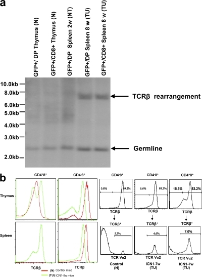 TCR expression by malignant and nonmalignant cells. (a) TCR-β rearrangement in various cell types. Analysis of TCR-β rearrangement by Southern blot analysis in GFP+CD4+8+(GFP+/DP) and GFP+CD4−8+(GFP+/CD8+) thymocytes derived from retroviral GFP-empty vector–transplanted mice, as well as GFP+CD4+8+(GFP+/DP) and GFP+CD4−8+(GFP+/CD8+) splenocytes derived from retroviral GFP-ICN1–transplanted mice at 2 and 8 wk after BMT. Molecular markers are shown on the left. (b) TCR-β and TCRV-α2 expression by various lymphocyte subsets. (left) Staining with the pan TCR-β antibody H57. (right) Staining with Vα2 TCR antibody.