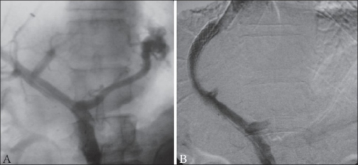 TIPS performed in a patient with uncontrolled varicealbleed. Portal venogram (A) obtained after puncture of the portal vein shows retrograde filling of the left gastric vein and feeding of a large junctional varix. The portosystemic gradient was recorded at 21 mm Hg. The post-TIPS venogram (B) shows good flow across the TIPS. Adequate decompression is evident from the non-fi lling of the left gastric vein and varices and reduction of the portosystemic gradient to 4 mm Hg