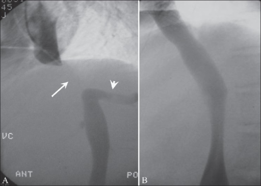 Budd-Chiari syndrome due to membranous obstruction of the inferior vena cava in the suprahepatic segment. Cavogram (A) shows a 4-cm long occlusion (arrow) of the inferior vena cava above the right hepatic vein (arrowhead); after needle fenestration of the occluded inferior vena cava through the femoral route, a stent is deployed across the occluded segment (B). The inferior vena cava is widely patent after stenting