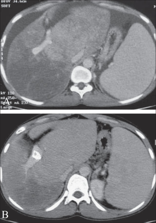 Contrast-enhanced CT scan of a patient with Budd-Chiari syndrome, before TIPS (A) and after TIPS (B), showing improvement in enhancement pattern of the liver parenchyma and regression of ascites following TIPS
