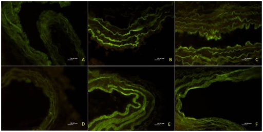 Effect of U50,488H on 3-nitrotyrosine expression in pulmonary arteries of HPH rats.Inserted are representative photographs of 3-nitrotyrosine expression in pulmonary arteries of HPH rats by immunofluorescence (400×). A, control; B, 2 w hypoxia; C, 2 w+normal saline; D, 2 w+U50,488H; E, 2 w+U50,488H+nor-BNI; F, 2 w+nor-BNI.