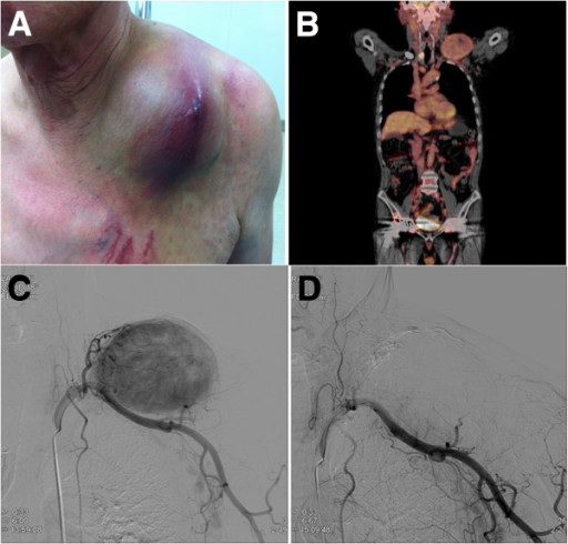 A 71-year-old man presented with a painful enlarging mass over the left clavicle. (A) Physical examination. (B) Positron emission tomography reveals a right thyroid tumor with a left clavicular metastasis. (C) Angiographic image from selective catheterization of the left subclavian artery. (D) Follow-up angiography after embolization shows no residual tumoral blush.