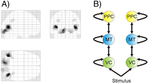 A. Left panel: Active sources from MSP reconstruction of evoked responses from 0 to 500 ms (the image shows the 200 most activated voxels). Three bilateral sources were found, in the early visual cortex (VC), the middle temporal area (MT) and the posterior parietal cortex (PPC). B. Right panel: Winning network structure from our dynamic causal modelling analysis. This reveals a plausible hierarchy in which PPC sits at the top, VC at the bottom, and MT in between.