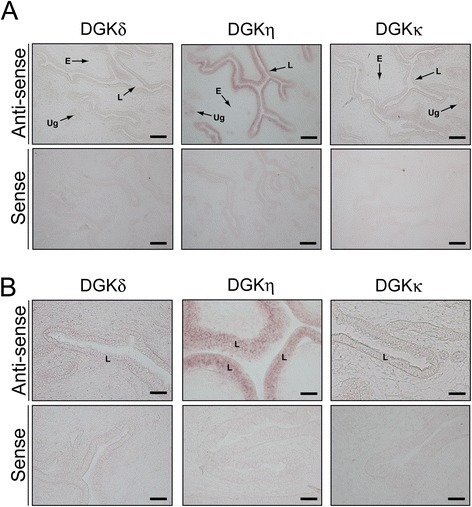 In situhybridization of the type II DGK mRNAs in the uterus of a 12-week-old female mouse. (A) The type II DGK mRNAs were hybridized and detected with the antisense probes of the type II DGK mRNAs. The uterus sections were also hybridized with the sense probes as controls. (B) High-magnification image of the endometrial epithelium. Representatives of four independent experiments with four female mice are shown. L, luminal epithelium; E, endometrium; Ug, uterine gland. The scale bars in (A) represent 200 μm, and the scale bars in (B) represent 40 μm.