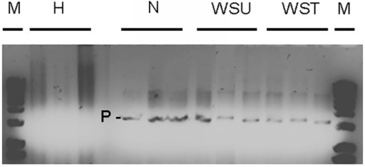 Determination of Philaster sp presence.PCR product check using Philaster sp specific primers (BrB-F-171 and BrB-R-1721) on healthy (H), sloughed tissue (ST), untreated (WSU) and treated WS (WST) samples, carried out using gel electrophoresis on a 1% agarose gel. P indicates bands representing Philaster sp. presence.