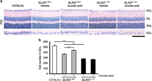 Arundic acid rescues RGC death in GLAST+/− mice by increasing GLAST expression. (a) Hematoxylin and eosin-stained retinal sections from wild-type, GLAST+/− and GLAST−/− mice at P35, with or without arundic acid (10 mg/kg) treatment. The scale bar represents 100 μm and 50 μm in the upper and lower panels, respectively. GCL, ganglion cell layer; INL, inner nuclear layer; ONL, outer nuclear layer. (b) Quantitative analyses of the number of neurons in the GCL following arundic acid treatment. The numbers of neurons in the GCL were counted in retinal sections from one ora serrata through the optic nerve to the other ora serrata (N=6). The data represent the mean±S.E.M.. **P<0.01 as determined by one-way ANOVA with Tukey–Kramer's post hoc analysis