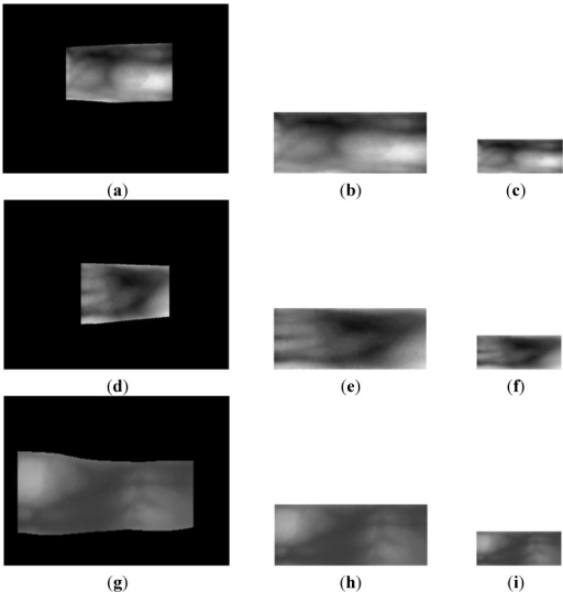 Linear stretching and sub-sampled results of finger-vein images from the three databases: Detected finger-region image from the (a) good-quality; (d) mid-quality; and (g) open databases, with their corresponding 150 × 60 pixel stretched images shown in (b,e,h), respectively, and their corresponding 50 × 20 pixel sub-sampled images shown in (c,f,i), respectively.