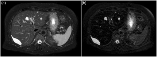 MRI of the liver with and without SPIO. (a) Axial T2W sequence with fat suppression showing two hyper intense, lobulated cyst-like lesions in segments II and IV, and one 6 cm sub-capsular lens-shaped lesion in segment VII. (b) Following SPIO four additional sub-centimeter lesions were detected.