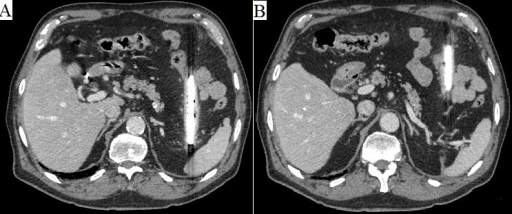 (A) abdominal CT scan: posterior end of the shard next to the spleen; (B) arrow points at the retroperitoneum scar, where the glass shard impaled the patient