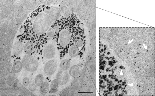 Luminal and cytoplasmic glycogen differs in size.Cells were infected for 30 hr with C. trachomatis. The picture on the right shows an enlargement of the boxed region. Glycogen is visualized by TEM after PATAg stain. Glycogen deposits in the inclusion lumen (arrowheads) are on average of bigger size than in the host cell cytoplasm (arrows). Scale bar: 1 µm.DOI:http://dx.doi.org/10.7554/eLife.12552.005