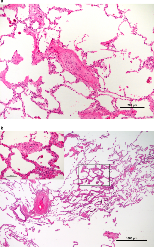 Lung histology of samples obtained after lung transplantation. As typically seen in pulmonary veno-occlusive disease (PVOD), small pulmonary veins and venules are partially or completely occluded by paucicellular fibrous thickening of the intimal layer (a). In addition, pulmonary arteries (b, bottom left) display eccentric wall-thickening. Also, focal broadening of the alveolar walls with multiplication of alveolar capillaries is observed (b, inset center), corresponding to pulmonary capillary hemangiomatosis, a feature that is typically observed in PVOD, these patchy foci are frequently associated with muscularized microvessels (b, inset top). Note the areas with emphysematous loss of alveoli (b, top and bottom).
