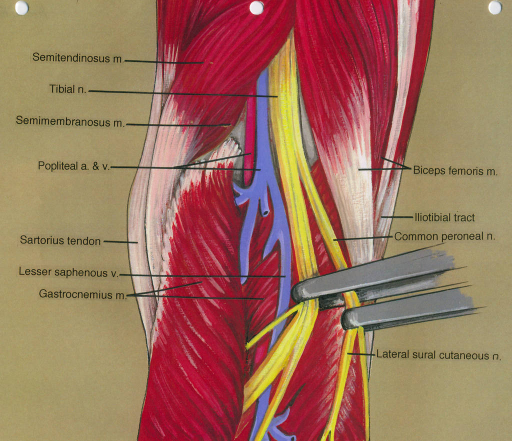 semitendinosus muscle; tibial nerve; semimembranosus muscle; popliteal artery; popliteal vein; sartorius tendon; lesser saphenous vein; gastrocnemius muscle; biceps femoris muscle; iliotibial tract; common fibular (peroneal) nerve; lateral sural cutaneous nerve