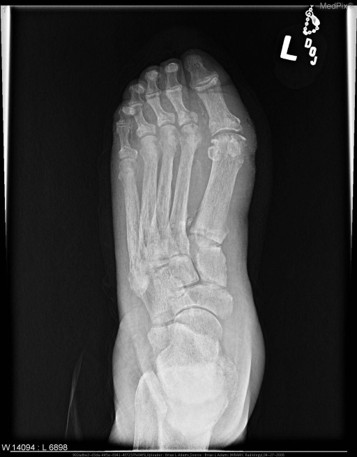 Anteroposterior radiograph of the left foot showing severe osteopenia of the bones of the foot and ankle, as well as extensive calcifications of the visualized arteries of the foot.  There is erosion of the medial aspect of the head of the first metatarsal and thickening of the adjacent medial soft tissues.  Additionally, there is ulceration (1.2 cm in length) in the superficial soft tissues medial to the head of the first metatarsal.  Also radiograph shows incidental findings of metatarsus primus varus with hallux valgus deformities.