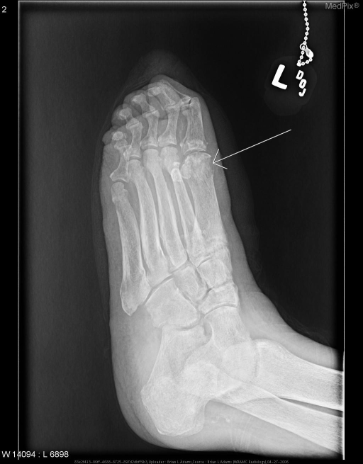 Oblique radiograph of the left foot showing severe osteopenia of the bones of the foot and ankle, as well as extensive calcifications of the visualized arteries of the foot.  There is erosion of the medial aspect of the head of the first metatarsal and thickening of the adjacent medial soft tissues.