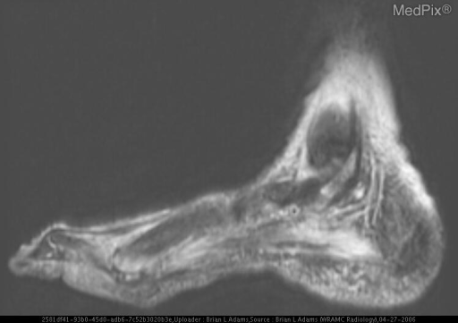 Fast spin echo (FSE), T2-weighted short tau inversion recovery (STIR), sagittal MR image of the left foot showing that areas of low-signal intensity on T1-weighted MR images (the soft tissues) become areas of high-signal intensity.  There are also areas of high-signal intensity in the head of the first metatarsal and the distal metaphysis and in the tibial (medial) sesamoid bone.  This fat-suppressed MR image also shows areas of high-signal intensity in the plantar muscles.