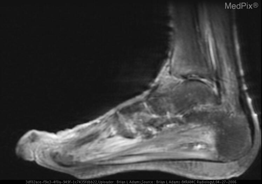 Post-contrast T1-weighted with fat saturation MR image of the left foot in sagittal plane shows no necrosis in muscles or soft tissues, which would be manifested by nonenhancing areas.