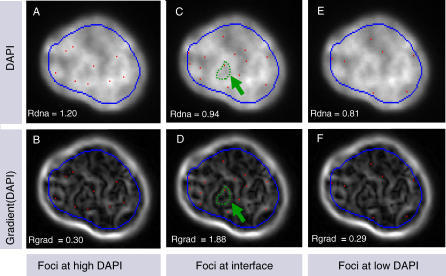 Illustration of Rdna and Rgrad MeasurementsThree hypothetical foci patterns over the same nucleus are illustrated with their corresponding Rdna and Rgrad values. Upper images (A,C,E) are overlays of the DAPI image with the center of hypothetical foci (in red). Lower images (B,D,F) are overlays of the foci location with the gradient image of DAPI. The gradient operator is often used in imaging as an edge detector. To illustrate this, the green arrow in (C) delineates the contour of the edge of a bright DAPI region. One can see in the corresponding gradient image in (D) that the same contour correlates to a bright gradient region. Rdna measures the ratio of the mean nuclear intensity at the foci locations over the mean intensity of the full nucleus. Rgrad measures the same ratio on the gradient image. Because the boundary of the nuclear image creates a strong gradient intensity, a conservative contour is used for nuclear segmentation (shown in blue) to avoid an edge effect when calculating Rdna and Rgrad. In (A) and (B), foci are placed in areas of surrounding high nuclear density. The surrounding high density keeps the foci distal from areas of density change, thus we see the foci lie in low-intensity regions in the corresponding gradient image. This results in Rdna above 1 and Rgrad below 1. By manually placing foci at different locations with respect to DNA density regions, we show that Rdna is high when foci are located in bright regions of the nucleus (A) and (B); Rgrad is high when foci are located at the interface of bright and dim regions of the nucleus (C) and (D); and Rdna is low when foci are located in dim regions of the nucleus (E) and (F).
