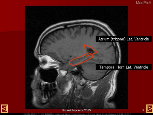 Normal Sagittal Anatomy - labeled image