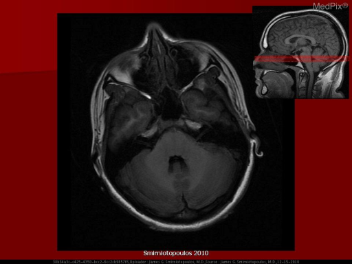 Normal Anatomy Axial T1-weighted image with labels.