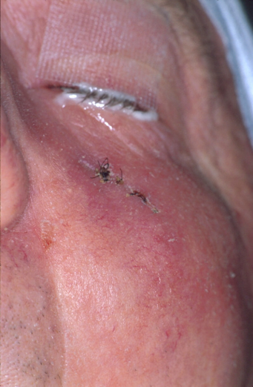Clinical appearance after first incisional biopsy: Discreet skin erythema below the left eye.