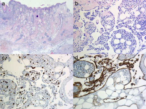 Histopathology. a: Overview image: Epidermis, followed by dermis with hair follicles and sebaceous glands. Tumour with unclear borders in the depth (H&E, 16×). b: In detail: Atypic, swollen endothelial cells with anastomosing, pseudopapillar patterns and lymphocytic inflammation (H&E, 200×). c: Immunohistochemistry with proliferation marker MIB-1 indicating proliferation in about 5%–10% of the cells (MIB-1, 200×). d: Positive immunohistochemical reaction to the endothelial marker CD 31 (CD 31, 200×).