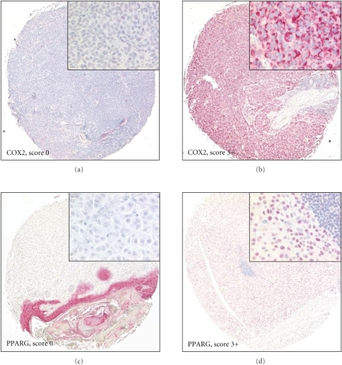 Immunohistochemical COX2 and PPARG staining of malignant melanomas on TMA-2. Original magnification 10x (insets 200x). Representative examples of a primary malignant melanoma with negative (a) and strong (b) immunoreactivity for COX2. Representative examples of a primary malignant melanoma with negative (c) and strong (d) immunoreactivity for PPARG.