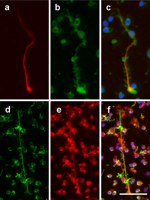 Presence of FBPase in cytoplasm of Müller cells. Double-immunofluorescent staining of isolated Müller cells with antibodies against vimentin (a), FBPase (b, e), and α-tubulin (d). c, f Merged images from, respectively, a, b or from d, e. Nuclei were counterstained with DAPI. Bar 50 μm