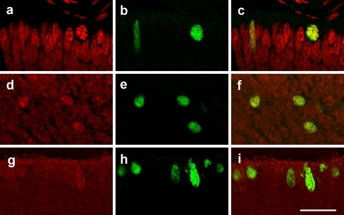 Immunofluorescent localization of aldolase A, FBPase, and Ki-67 in rat neonatal retinal sections. Labeling by antibodies against Ki-67 (b) with propidium-iodide-counterstained nuclei (a) and merged image of a, b (c). Double-labeling with antibodies against muscle aldolase (d) and Ki-67 (e) and merged image of d, e (f). Double-labeling with antibodies against FBPase (g) and Ki-67 (h) and merged image of g, h (i). Merged images reveal co-localization of aldolase and FBPase with Ki-67. Bar 15 μm