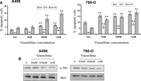 Effect of vinorelbine on A498 and 786-O apoptosis, Akt phosphorylation and caspase activity in vitro. (A) A498 and 786-O apoptosis were measured following treatment with different doses of vinorelbine after 72 hrs and 48 hrs, respectively, by the Annexin/PI method. At a 100 nM concentration, significantly higher levels of Annexin/PI staining were recorded in vinorelbine-treated A498 cells (P < 0.01). In 786-O renal cancer cells, only 10 nM dose of vinorelbine induced significant apoptosis (P < 0.01). **, P < 0.01(treated group versus control group). (B) After A498 cells were treated with vinorelbine for 72 hrs, a down-regulation of Akt phosphorylation was observed in the 100 nM treatment group. In 786-O, a marked down-regulation in Akt phosphorylation was observed at a 1.0 μM dose after 48 hrs of treatment. Total Akt1 was used as a loading control. (C) A498 and 786-O cells were treated with vinorelbine for 72 hrs and 48 hrs, respectively, and increased caspase-3 and -9 activity was detected in the 100 nM and 1.0 μM dose treatment groups of A498 and 786-O, respectively. β-Actin was used as a loading control.