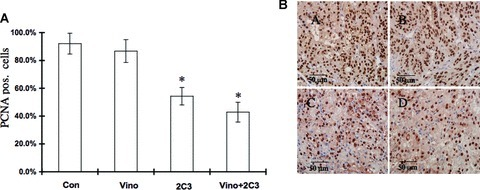 Effect of vinorelbine alone and in combination with VEGF antibody 2C3 on PCNA expression in vivo. (A) Nude mice were treated with vinorelbine, 2C3, or vinorelbine in combination with 2C3 after subcutaneous injection of the renal cancer cell line A498. The control group received control antibody. Treatment of vinorelbine in vivo showed no considerable effect on PCNA expression. 2C3 alone or in combination with vinorelbine demonstrated a significant effect on the inhibition of the PCNA level. *, P < 0.05 (treated group versus control group). (B) PCNA-stained tumour sections. (A) Control group received only control antibody, (B) received vinorelbine only, (C) received 2C3 only and (D) received both vinorelbine and 2C3.